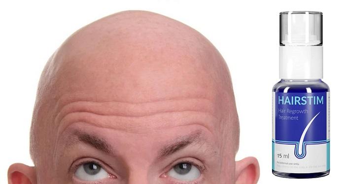Hairstim gegen Haarausfall: du wirst die Kahlheit los, verdicke deine Haare und bekämpf Schuppen 7-mal schneller!